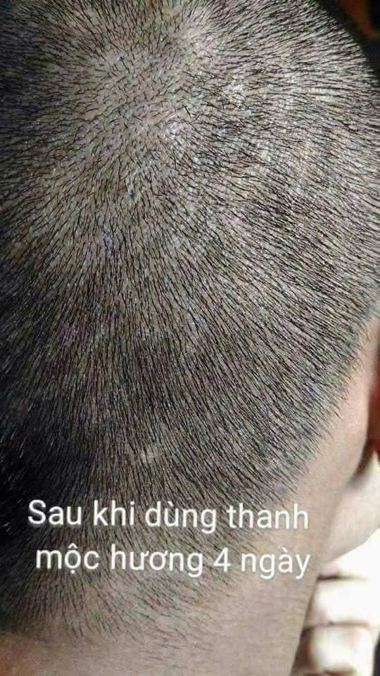 Thanh Mộc Hương trị nấm da đầu hiệu quả bằng thảo dược