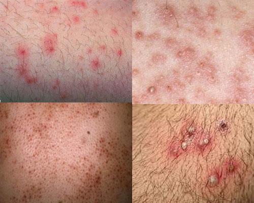 [Đánh giá] Thanh Mộc Hương chữa viêm nang lông có tốt không?