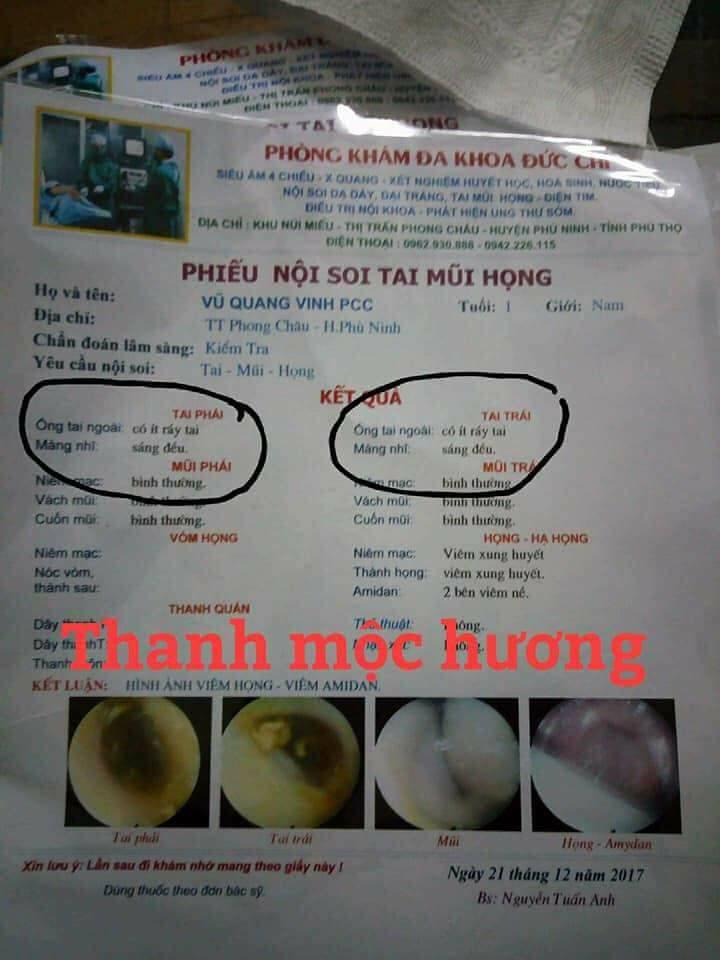 thuốc đặc trị viêm xoang Thanh Mộc Hương