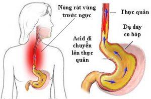 Chữa bệnh trào ngược dạ dày thực quản bằng thảo mộc dân tộc Dao Thanh Mộc Hương