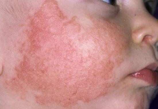 Chữa bệnh viêm da cơ địa bằng bài thuốc gia truyền Thanh Mộc Hương
