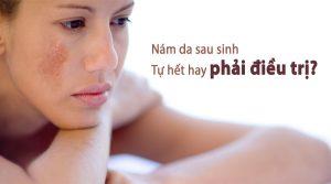 Trị nám da sau sinh an toàn từ thảo dược Thanh Mộc Hương
