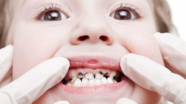 Cách phòng và chữa bệnh sâu răng hiệu quả tại nhà