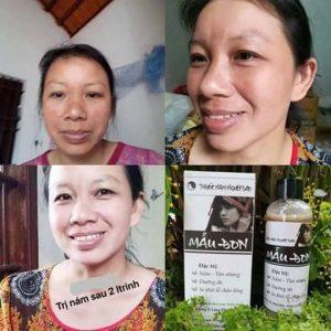Cách sử dụng thuốc trị nám Mẫu Đơn Thanh Mộc Hương