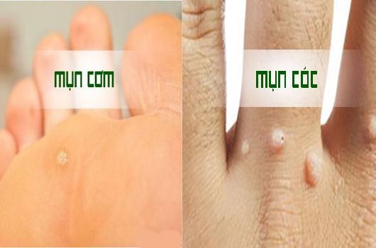 Thuốc đặc trị mụn cóc mụn cơm phân phối bởi Thanh Mộc Hương