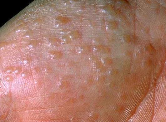 Những phương pháp dân gian điều trị bệnh tổ đỉa trong mùa hè này