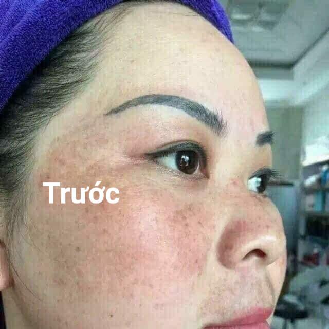 Bộ Trị Nám Tàn Nhang Clobetamil G Thái Lan - Sạch Nám, Trắng Da