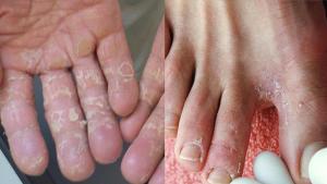 Nước ăn chân tay là gì? Thuốc trị nước ăn chân tay hiệu quả và an toàn
